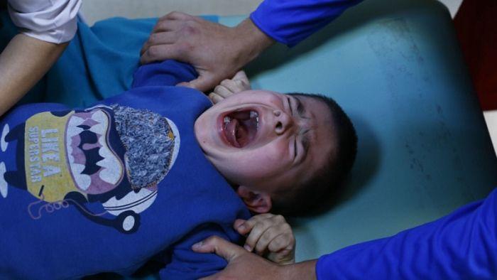 필고 - 마닐라에 포경수술 하는곳 있나요?